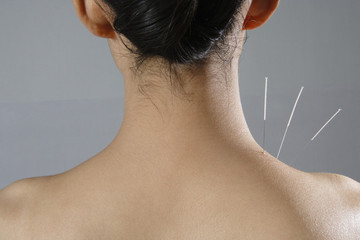 Why Celebs Love Acupuncture—And You Might, Too