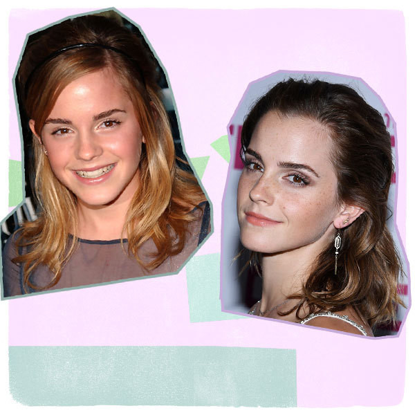Modern Magic: Emma Watson's Hair Transformation