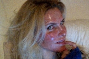 Brandi Glanville Burned Her Face With a Laser—Want to See?